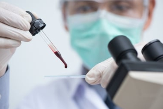 Teste que permite detectar câncer em 10 minutos